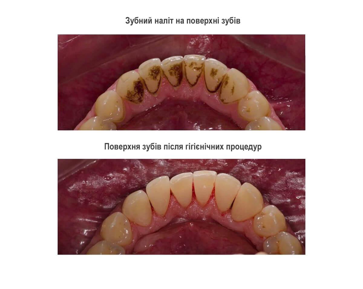 Зубний наліт, зубний камінь