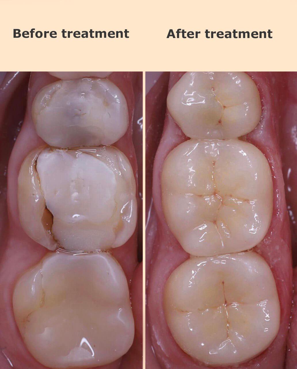 Установка керамических накладок на зубы